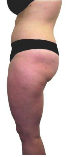 Fat Reduction Treatment