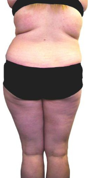 Fat Reducing Treatments