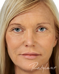 Anti-Wrinkle-Treatments-Full-Face-After