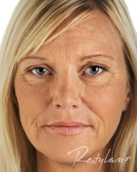 Anti-Wrinkle-Treatments-Before-Full-Face