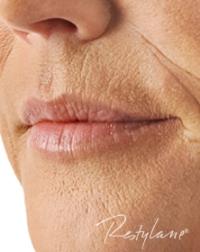 Remove wrinkles